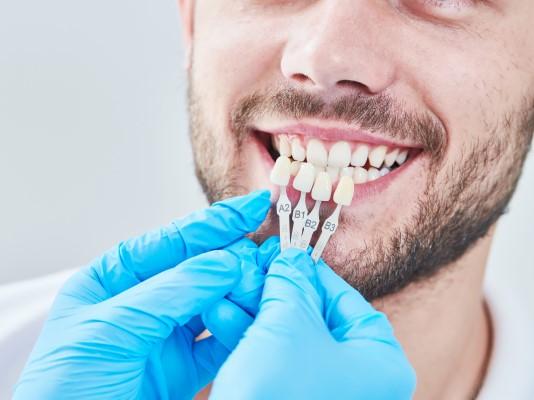 Dental Veneers 77515